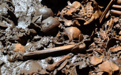 Bones to unpick